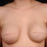 Reconstructive Breast Revision - Case #4 Before