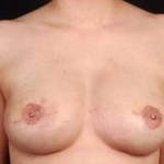 Reconstructive Breast Revision - Case #4 After