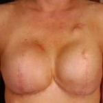 Reconstructive Breast Revision - Case #5 Before