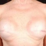 Reconstructive Breast Revision - Case #6 Before