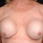 Reconstructive Breast Revision - Case #7 Before