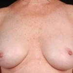 Reconstructive Breast Revision - Case #7 After