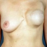 Reconstructive Breast Revision - Case #8 Before