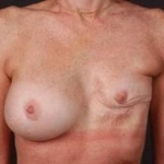 Reconstructive Breast Revision - Case #9 Before