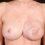 Reconstructive Breast Revision - Case #9 After