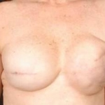 Reconstructive Breast Revision - Case #10 Before