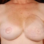 Reconstructive Breast Revision - Case #10 After