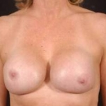 Reconstructive Breast Revision - Case #11 Before