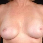Reconstructive Breast Revision - Case #11 After