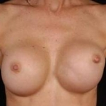 Reconstructive Breast Revision - Case #12 Before