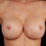 Reconstructive Breast Revision - Case #12 After