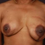 Reconstructive Breast Revision - Case #13 Before