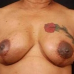 Reconstructive Breast Revision - Case #13 After