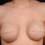 Reconstructive Breast Revision - Case #14 Before