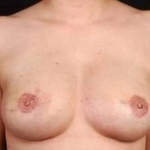 Reconstructive Breast Revision - Case #14 After