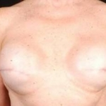 Reconstructive Breast Revision - Case #15 Before