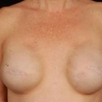 Reconstructive Breast Revision - Case #16 Before