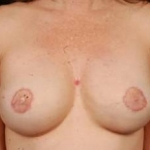 Reconstructive Breast Revision - Case #16 After