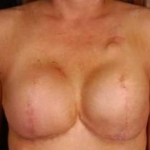 Reconstructive Breast Revision - Case #17 Before