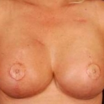 Reconstructive Breast Revision - Case #17 After