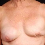 Reconstructive Breast Revision - Case #18 Before