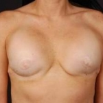 Reconstructive Breast Revision - Case #19 Before