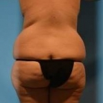 Liposuction, Body Lift and Brazilian Butt Lift Case #5 Before