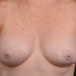 Breast Revision - Case #62 Before