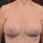 Breast Revision - Case #62 After