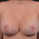 Breast Revision - Case #65 After