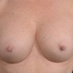 Breast Revision - Case #66 Before