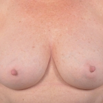 Breast Revision - Case #66 After