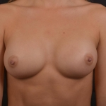 Breast Augmentation Silicone Gel - Case #76 After