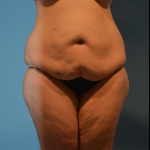 Abdominoplasty, Liposuction, Body Lift, BBL - Case #36 Before