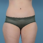 Abdominoplasty, Liposuction, Body Lift, BBL - Case #36 After