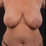 Abdominoplasty - Case #46 Before