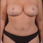Abdominoplasty - Case #46 After