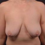 Breast Reduction - Case #35 Before