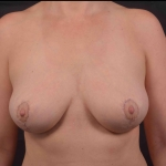 Breast Reduction - Case #35 After
