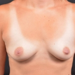 Breast Augmentation Silicone Gel - Case #77 Before