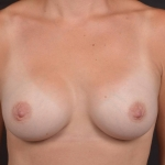 Breast Augmentation Silicone Gel - Case #77 After