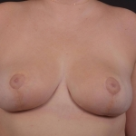 Breast Reduction - Case #36 After