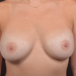 Breast Revision - Case #67 Before