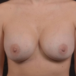 Breast Revision - Case #67 After
