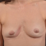 Breast Revision - Case #70 Before