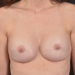 Breast Revision - Case #70 After