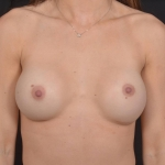 Breast Revision - Case #72 Before