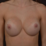 Breast Revision - Case #72 After