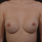 Breast Augmentation Silicone Gel - Case #81 After