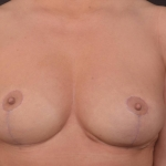 Breast Revision - Case #74 After